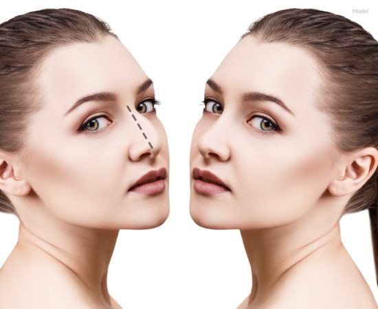 Concept of a woman before and after her rhinoplasty surgery.
